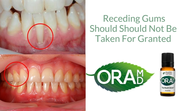 Receding Gums Treatment1.jpg