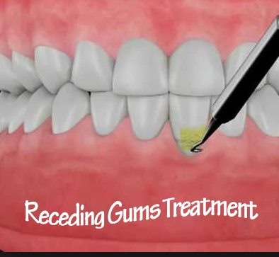 Receding Gums Treatment2.jpg